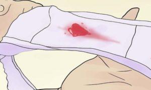 Кровь после па