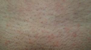 Мелкая сыпь на лобке