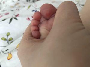Красные подушечки пальцев на ногах