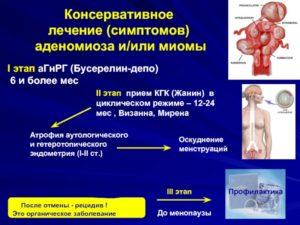Лечение аденомиоза бусерелином
