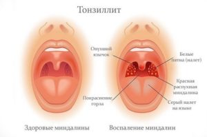 Кровь при тонзиллите