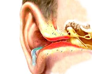 Из уха течет синяя или зеленая жидкость