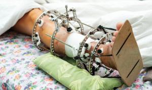 Лечение ранок после снятия фиксирующих спиц