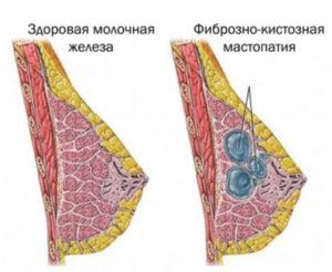 Мастопатия молочных желез 2-ой степени