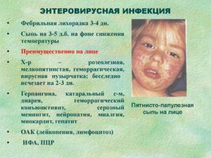 Как долго ребёнок заразен энтеровирусом