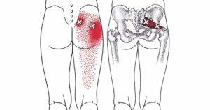 Боли в области таза слева отдающие в ногу