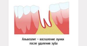 Болит зуб 6 слева внизу