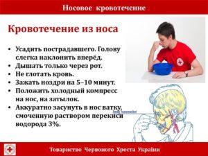 Кровотечение из носа и головокружение