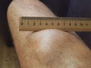 Липома на голени
