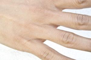 Испортилась кожа рук