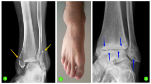 Перелом наружной лодыжки: когда можно наступать на ногу?