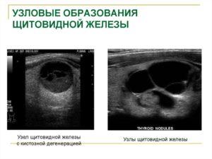 Кистозно-солидное образование в щитовидной железе