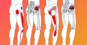 Болит ягодица, нога