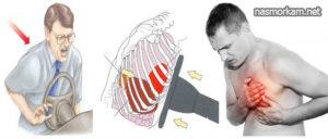 Болит грудная клетка после сильнейшего кашля