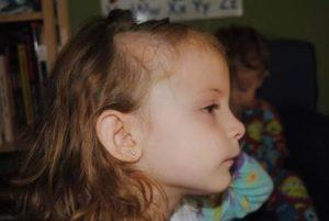 Ломкость волос у ребенка