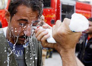 Брызги горячей воды возможно попали в глаз