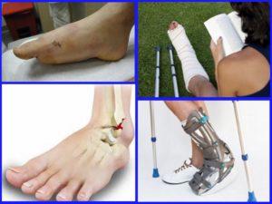 Боли в ноге после перелома