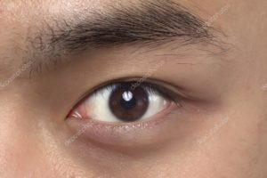 Левый глаз искривляет линии.