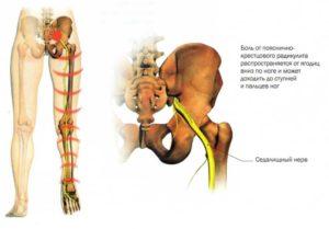 Боли в пояснично-крестцовом отделе позвоночника, иногда ощущение онемения конечностей