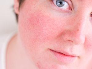 Красткосрочные покраснения в основном на лице и груди)