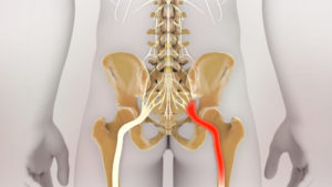 Боли в спине в поясничном отделе, отнимается нога
