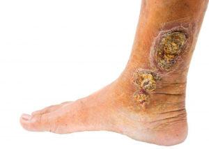 Болячка на ступне
