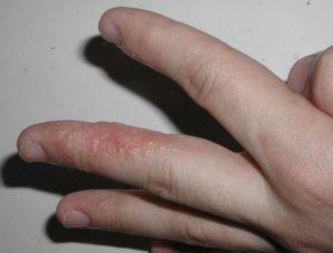 Болезненные волдыри на пальце руки