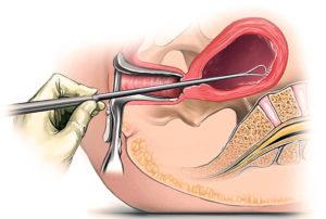 Кровит после проверки труб долго