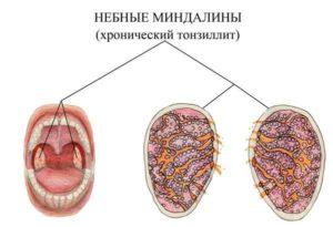 Хронический тонзиллит и постоянные простуды