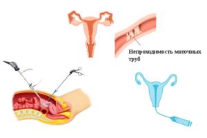 Искусственная инсеминация при частичной проходимости маточных труб
