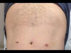 Келоидный рубец после операции паховый грыжи