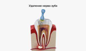 Болит зуб после наложения лекарства