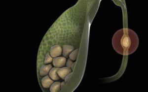 Гепатит С и камни в желчном