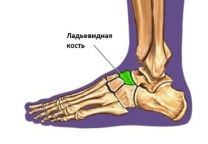 Боль в добавочной ладьевидной кости