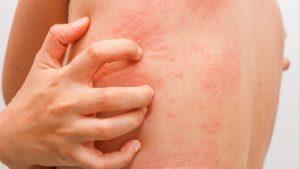 Как убрать уплотнения, покраснения и зуд после приема прогестерона?
