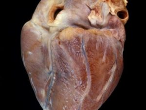 Изношенное сердце