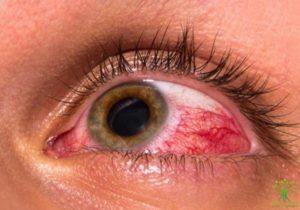 Катаракта при повышенном глазном давлении