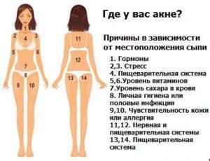 Какие конкретно нужно сдать анализы при высыпания на лице, груди и плечах