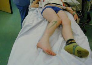 Как лечить травму колена у ребенка