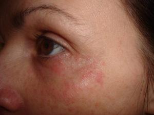 Красное пятно на лице под глазом