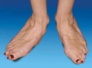 Боль во втором пальце ноги