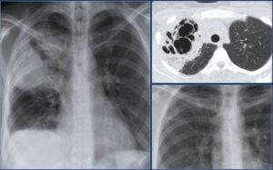 Буллезная трансформация обоих лёгких