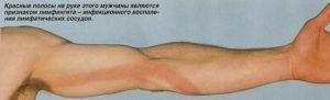 Лимфаденит левого предплечья, стали видны вены