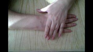 Кривой палец после травмы