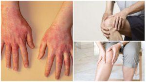 Лечение ДТЗ, тирозол, аллергия