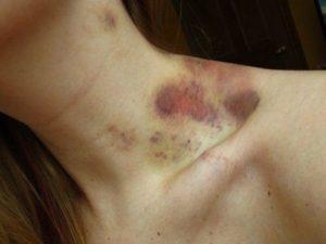 Кровоподтеки на шее