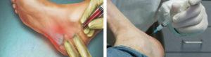 Был сделан укол дипроспана (лечила пяточную шпору) на 18 день цикла