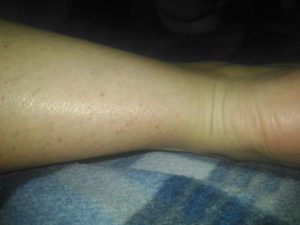Красные пятна на ногах после загара