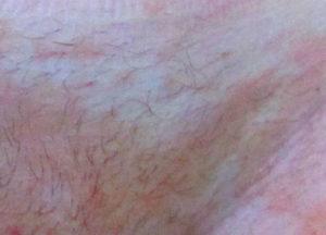 Красные точки в паху и покраснение мошонки и пч