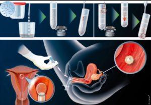 Искусственная инсеминация спермой донора